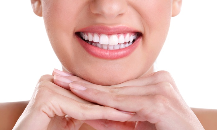 Teeth-Whitening-before-after-NhaKhoaThienBao-02