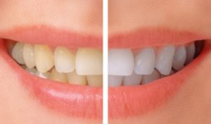 Teeth-Whitening-before-after-NhaKhoaThienBao